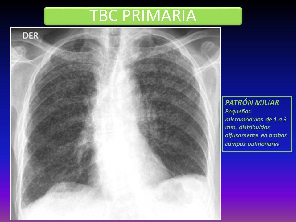 TBC PRIMARIA PATRÓN MILIAR Pequeños micromódulos de 1 a 3 mm. distribuidos difusamente en ambos campos pulmonares.