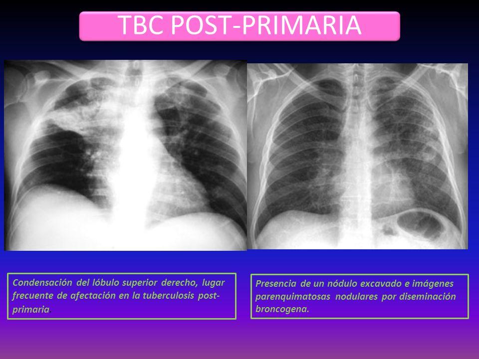 TBC POST-PRIMARIA Condensación del lóbulo superior derecho, lugar frecuente de afectación en la tuberculosis post- primaria. Presencia de un nódulo ex