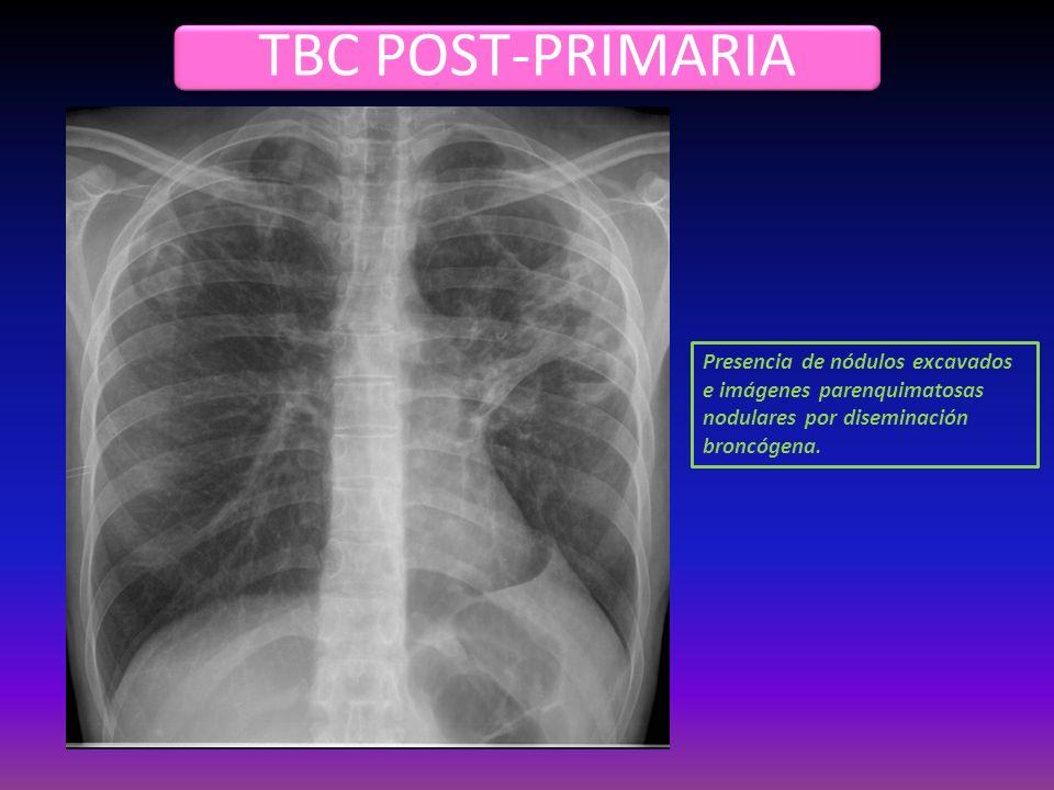 TBC POST-PRIMARIA Presencia de nódulos excavados e imágenes parenquimatosas nodulares por diseminación broncógena.