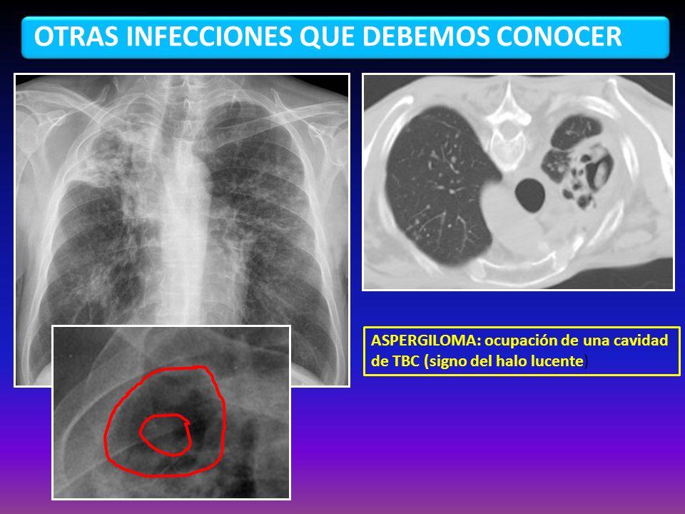 OTRAS INFECCIONES QUE DEBEMOS CONOCER ASPERGILOMA: ocupación de una cavidad de TBC (signo del halo lucente)