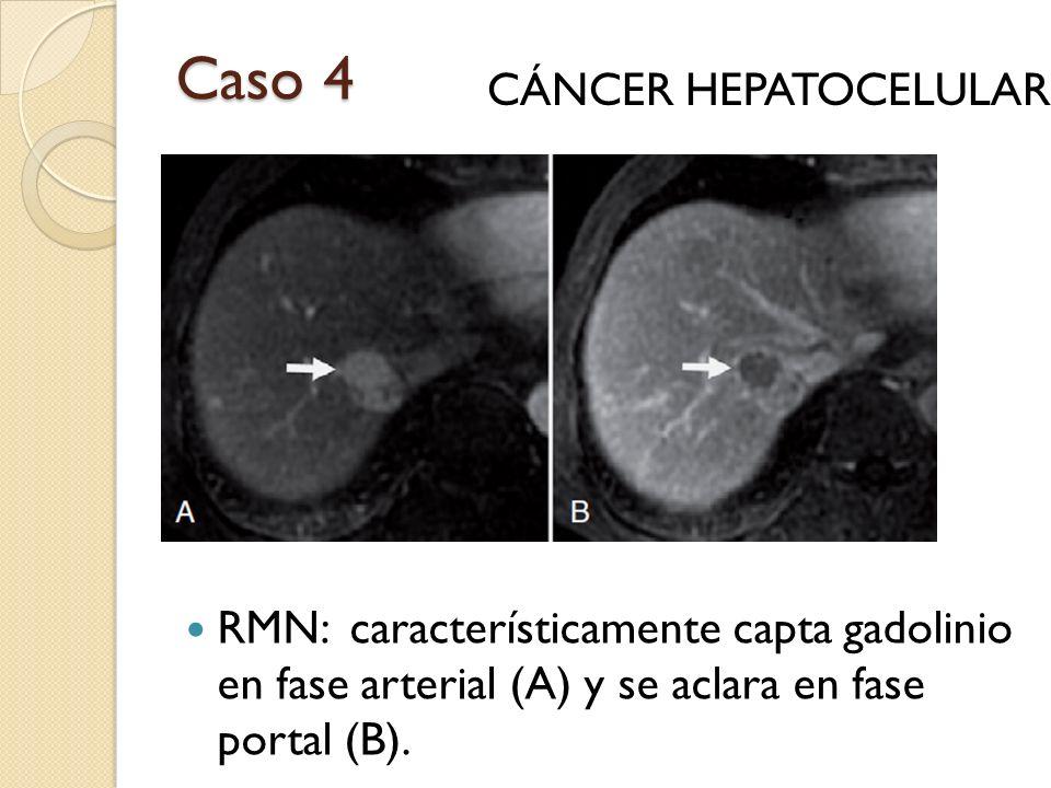 Caso 4 RMN: característicamente capta gadolinio en fase arterial (A) y se aclara en fase portal (B). CÁNCER HEPATOCELULAR