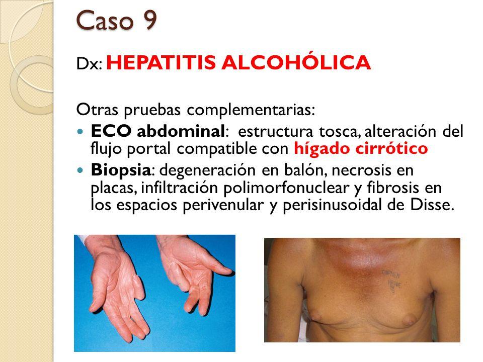 Dx: HEPATITIS ALCOHÓLICA Otras pruebas complementarias: ECO abdominal: estructura tosca, alteración del flujo portal compatible con hígado cirrótico B