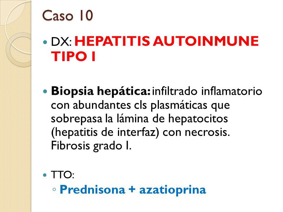 DX: HEPATITIS AUTOINMUNE TIPO I Biopsia hepática: infiltrado inflamatorio con abundantes cls plasmáticas que sobrepasa la lámina de hepatocitos (hepat