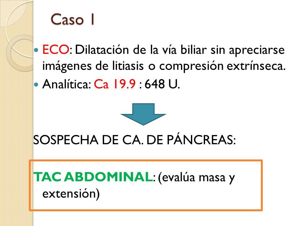 ECO: Dilatación de la vía biliar sin apreciarse imágenes de litiasis o compresión extrínseca. Analítica: Ca 19.9 : 648 U. SOSPECHA DE CA. DE PÁNCREAS: