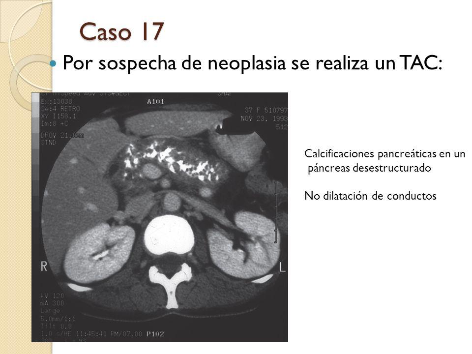 Caso 17 Por sospecha de neoplasia se realiza un TAC: Calcificaciones pancreáticas en un páncreas desestructurado No dilatación de conductos