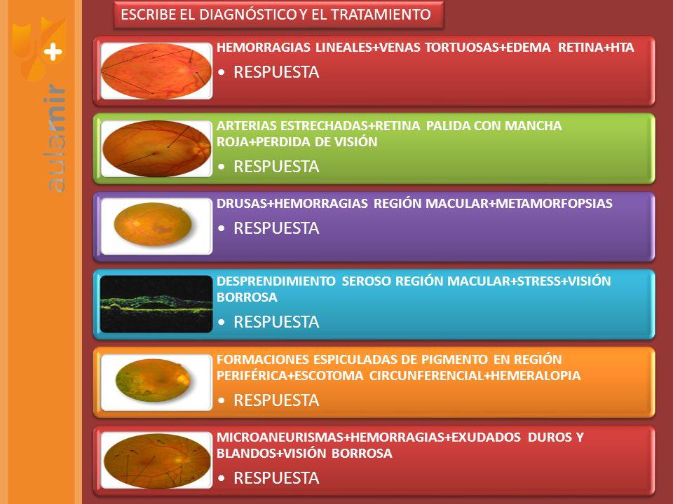 HEMORRAGIAS LINEALES+VENAS TORTUOSAS+EDEMA RETINA+HTA RESPUESTA ARTERIAS ESTRECHADAS+RETINA PALIDA CON MANCHA ROJA+PERDIDA DE VISIÓN RESPUESTA DRUSAS+HEMORRAGIAS REGIÓN MACULAR+METAMORFOPSIAS RESPUESTA DESPRENDIMIENTO SEROSO REGIÓN MACULAR+STRESS+VISIÓN BORROSA RESPUESTA FORMACIONES ESPICULADAS DE PIGMENTO EN REGIÓN PERIFÉRICA+ESCOTOMA CIRCUNFERENCIAL+HEMERALOPIA RESPUESTA MICROANEURISMAS+HEMORRAGIAS+EXUDADOS DUROS Y BLANDOS+VISIÓN BORROSA RESPUESTA ESCRIBE EL DIAGNÓSTICO Y EL TRATAMIENTO