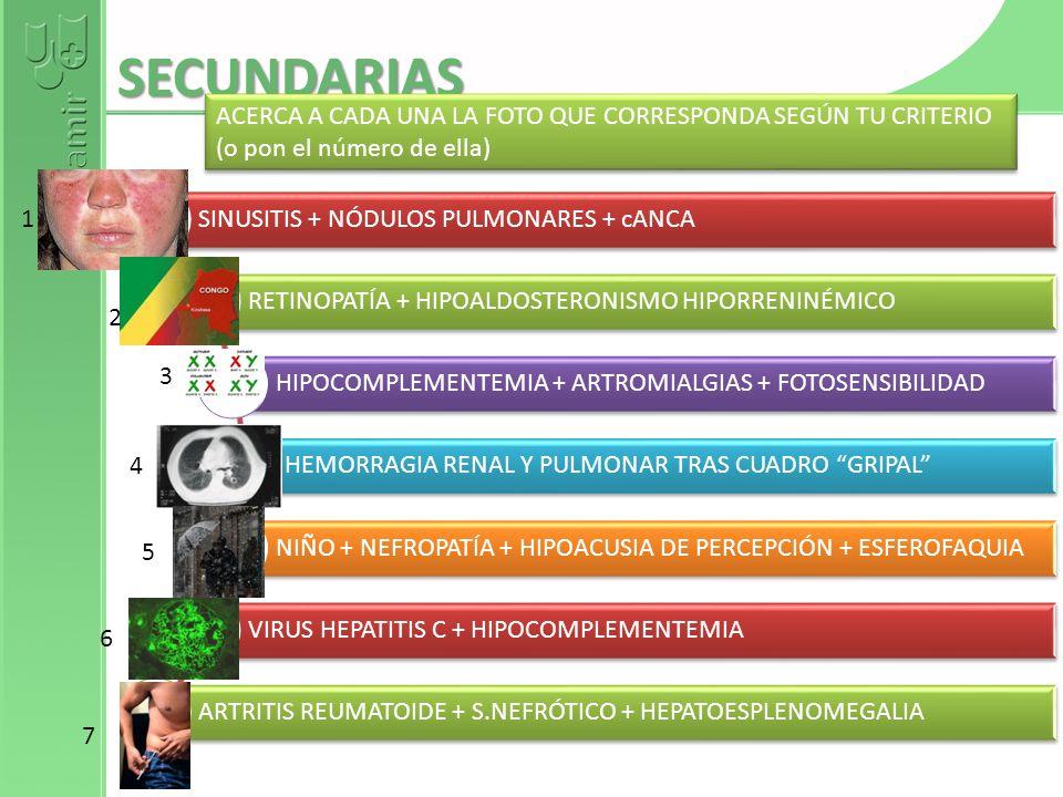 SECUNDARIAS SINUSITIS + NÓDULOS PULMONARES + cANCA RETINOPATÍA + HIPOALDOSTERONISMO HIPORRENINÉMICO HIPOCOMPLEMENTEMIA + ARTROMIALGIAS + FOTOSENSIBILI