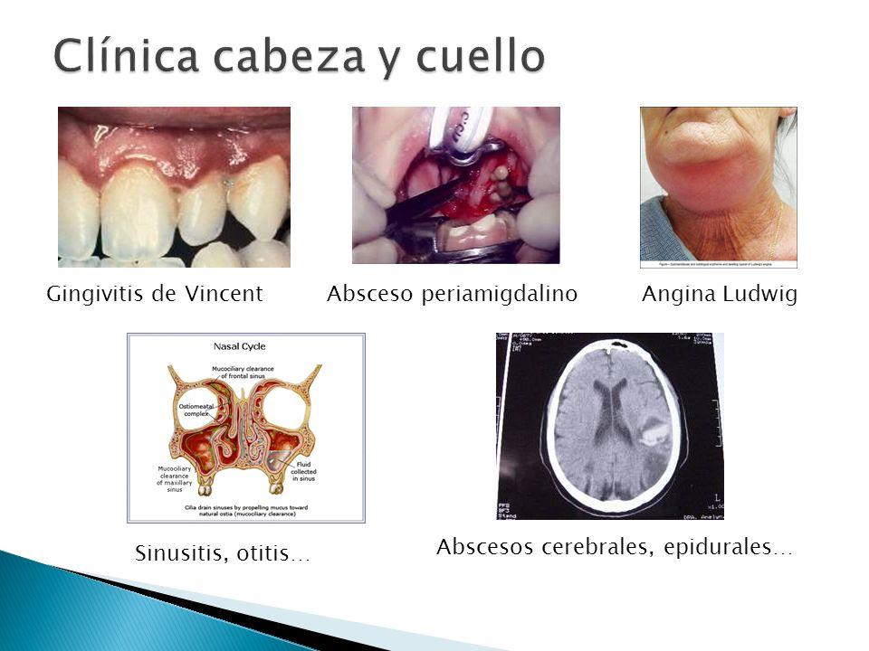 PLEUROPULMONARES (gérmenes de la boca y bacteroides) Neumonías y abscesos por aspiración INTRAABDOMINALES: Bacteroides es el principal germen anaerobio implicado en abscesos intraabdominales (junto a E.coli).