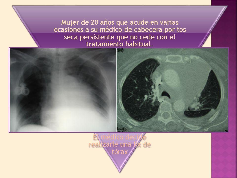 Mujer de 20 años que acude en varias ocasiones a su médico de cabecera por tos seca persistente que no cede con el tratamiento habitual.