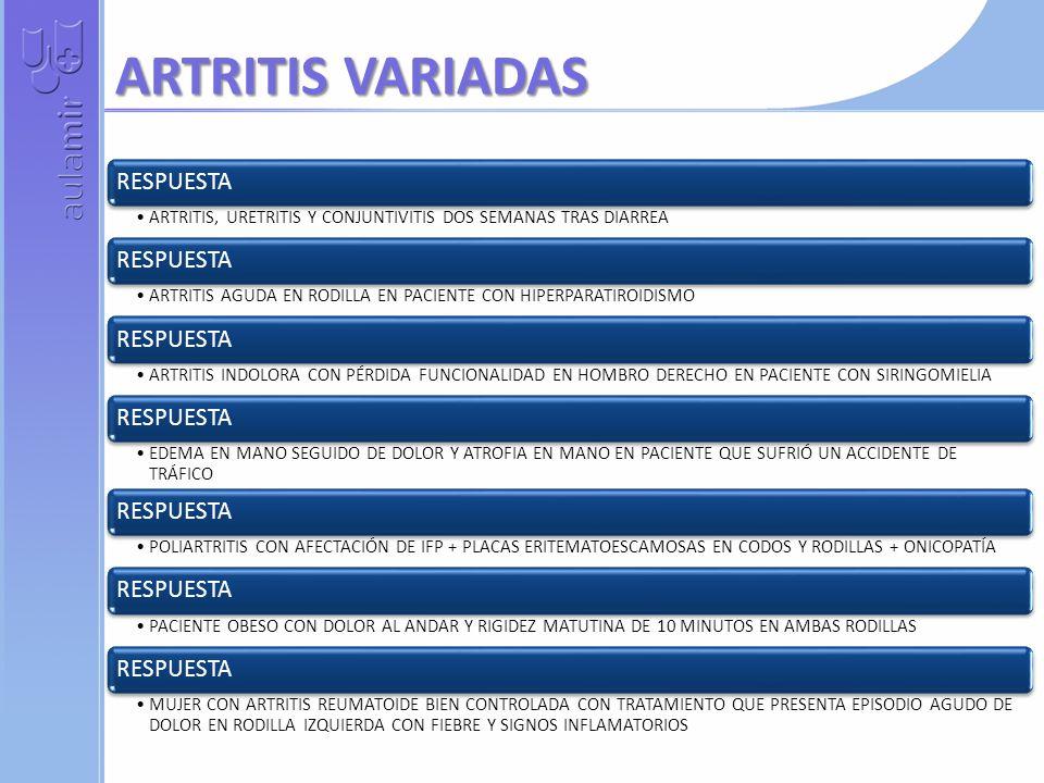 ARTRITIS VARIADAS RESPUESTA ARTRITIS, URETRITIS Y CONJUNTIVITIS DOS SEMANAS TRAS DIARREA RESPUESTA ARTRITIS AGUDA EN RODILLA EN PACIENTE CON HIPERPARATIROIDISMO RESPUESTA ARTRITIS INDOLORA CON PÉRDIDA FUNCIONALIDAD EN HOMBRO DERECHO EN PACIENTE CON SIRINGOMIELIA RESPUESTA EDEMA EN MANO SEGUIDO DE DOLOR Y ATROFIA EN MANO EN PACIENTE QUE SUFRIÓ UN ACCIDENTE DE TRÁFICO RESPUESTA POLIARTRITIS CON AFECTACIÓN DE IFP + PLACAS ERITEMATOESCAMOSAS EN CODOS Y RODILLAS + ONICOPATÍA RESPUESTA PACIENTE OBESO CON DOLOR AL ANDAR Y RIGIDEZ MATUTINA DE 10 MINUTOS EN AMBAS RODILLAS RESPUESTA MUJER CON ARTRITIS REUMATOIDE BIEN CONTROLADA CON TRATAMIENTO QUE PRESENTA EPISODIO AGUDO DE DOLOR EN RODILLA IZQUIERDA CON FIEBRE Y SIGNOS INFLAMATORIOS