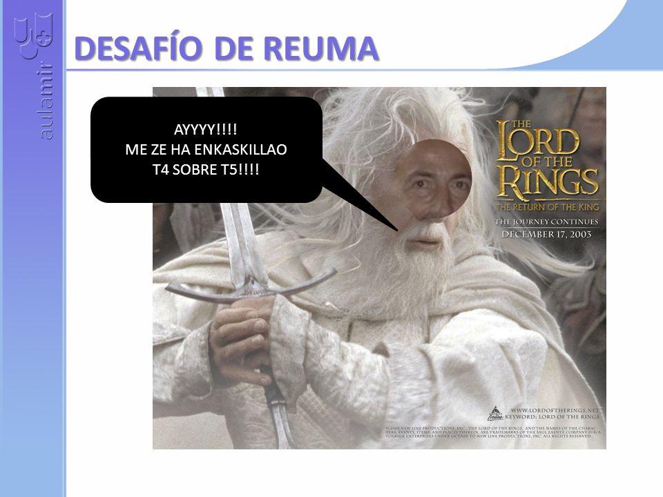 DESAFÍO DE REUMA AYYYY!!!! ME ZE HA ENKASKILLAO T4 SOBRE T5!!!!