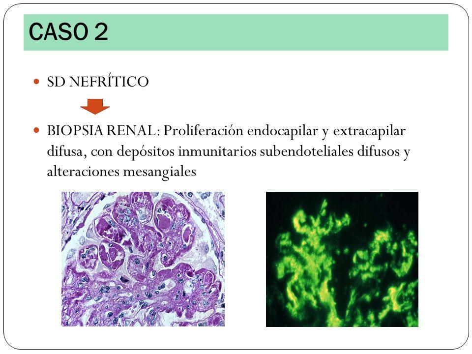 SD NEFRÍTICO BIOPSIA RENAL: Proliferación endocapilar y extracapilar difusa, con depósitos inmunitarios subendoteliales difusos y alteraciones mesangi