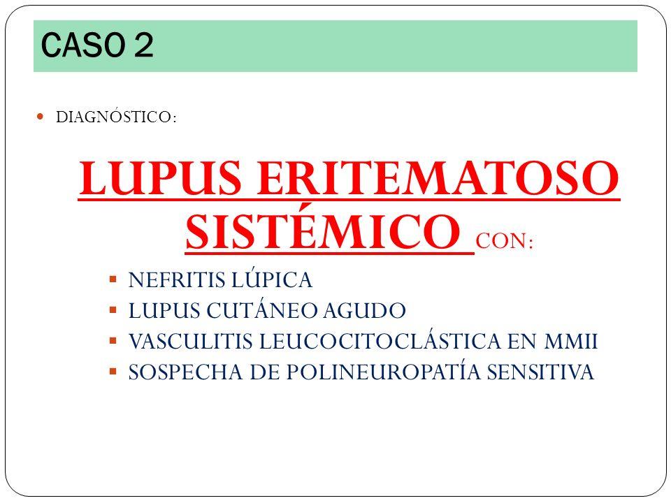 DIAGNÓSTICO: LUPUS ERITEMATOSO SISTÉMICO CON: NEFRITIS LÚPICA LUPUS CUTÁNEO AGUDO VASCULITIS LEUCOCITOCLÁSTICA EN MMII SOSPECHA DE POLINEUROPATÍA SENS