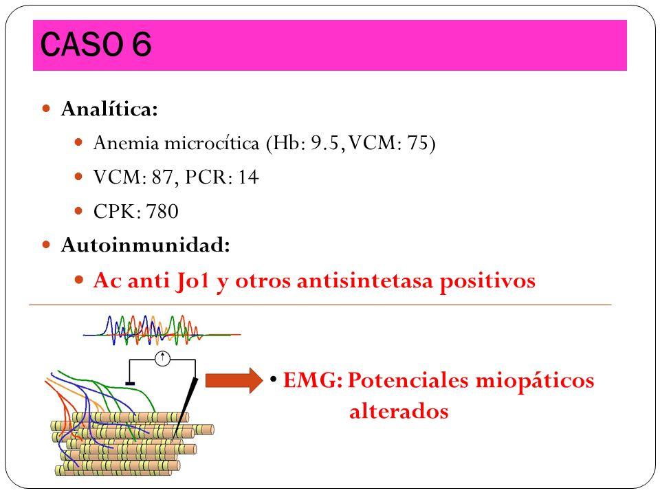 Analítica: Anemia microcítica (Hb: 9.5, VCM: 75) VCM: 87, PCR: 14 CPK: 780 Autoinmunidad: Ac anti Jo1 y otros antisintetasa positivos CASO 6 EMG: Pote