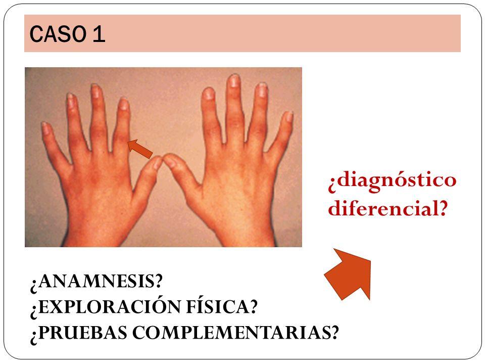 CASO 1 ¿ANAMNESIS? ¿EXPLORACIÓN FÍSICA? ¿PRUEBAS COMPLEMENTARIAS? ¿diagnóstico diferencial?