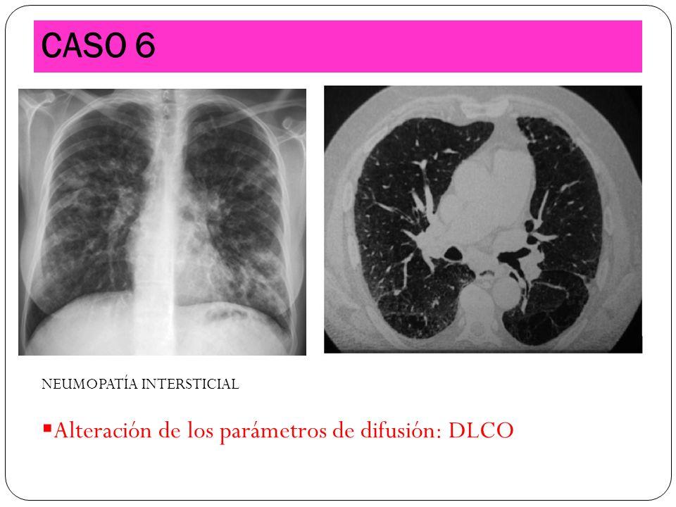 CASO 6 NEUMOPATÍA INTERSTICIAL Alteración de los parámetros de difusión: DLCO