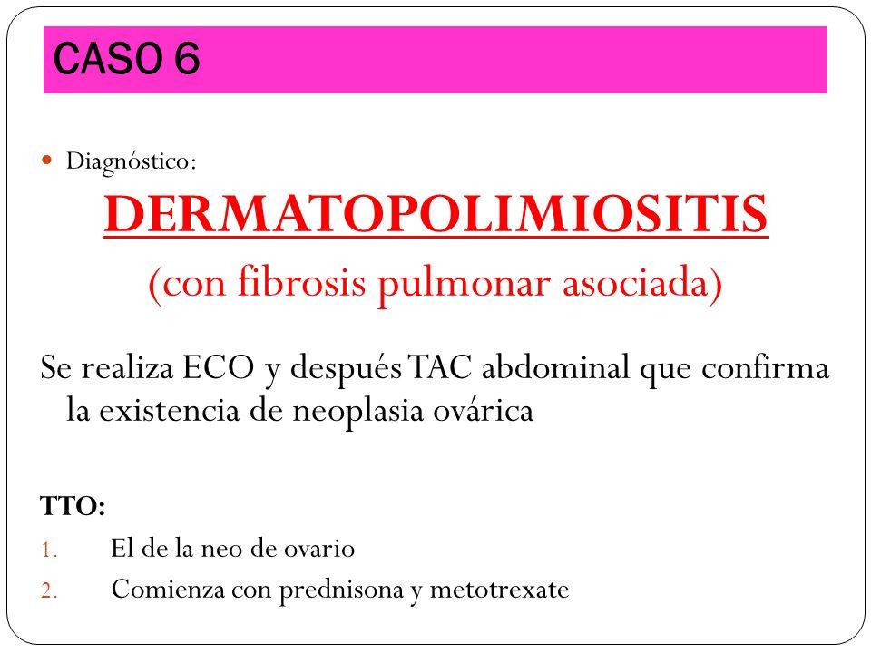 Diagnóstico: DERMATOPOLIMIOSITIS (con fibrosis pulmonar asociada) Se realiza ECO y después TAC abdominal que confirma la existencia de neoplasia ovári