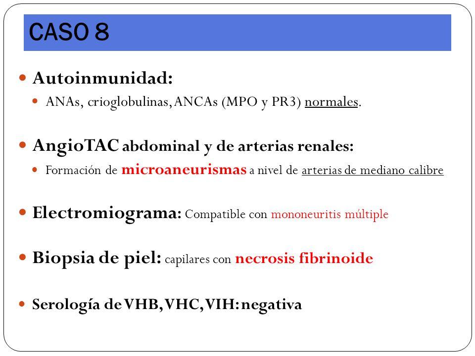 Autoinmunidad: ANAs, crioglobulinas, ANCAs (MPO y PR3) normales. AngioTAC abdominal y de arterias renales: Formación de microaneurismas a nivel de art
