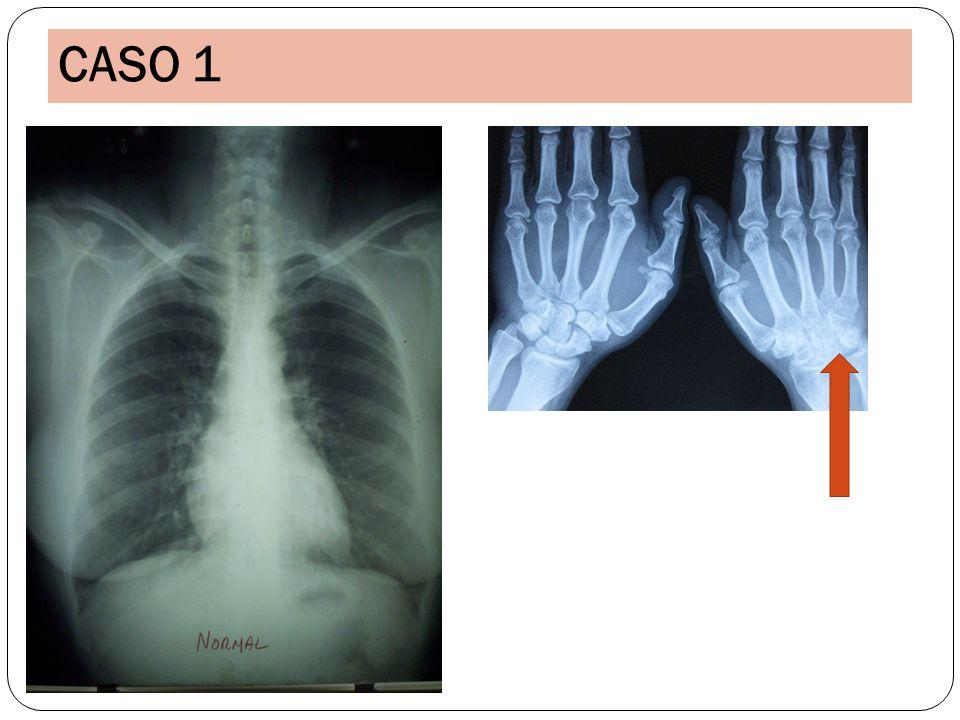 El mismo caso clínico que el anterior con CASOS 10 y 11 pólipos nasales, sinusitis Crisis asmáticas.