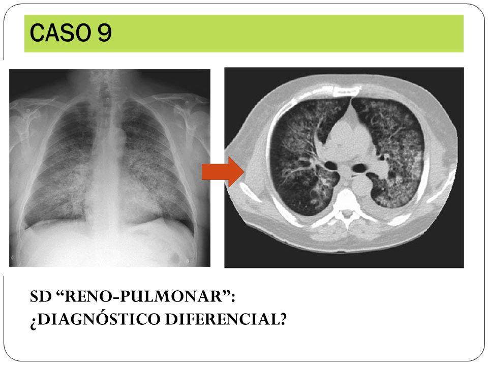 CASO 9 SD RENO-PULMONAR: ¿DIAGNÓSTICO DIFERENCIAL?
