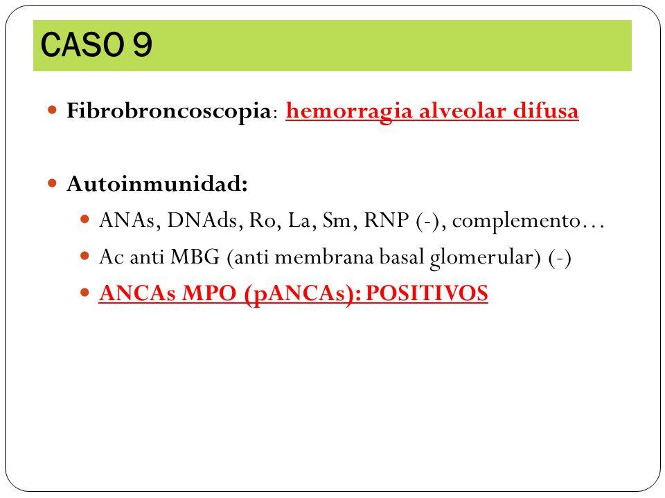 Fibrobroncoscopia : hemorragia alveolar difusa Autoinmunidad: ANAs, DNAds, Ro, La, Sm, RNP (-), complemento… Ac anti MBG (anti membrana basal glomerul