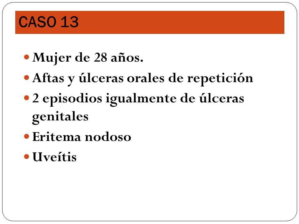 Mujer de 28 años. Aftas y úlceras orales de repetición 2 episodios igualmente de úlceras genitales Eritema nodoso Uveítis CASO 13