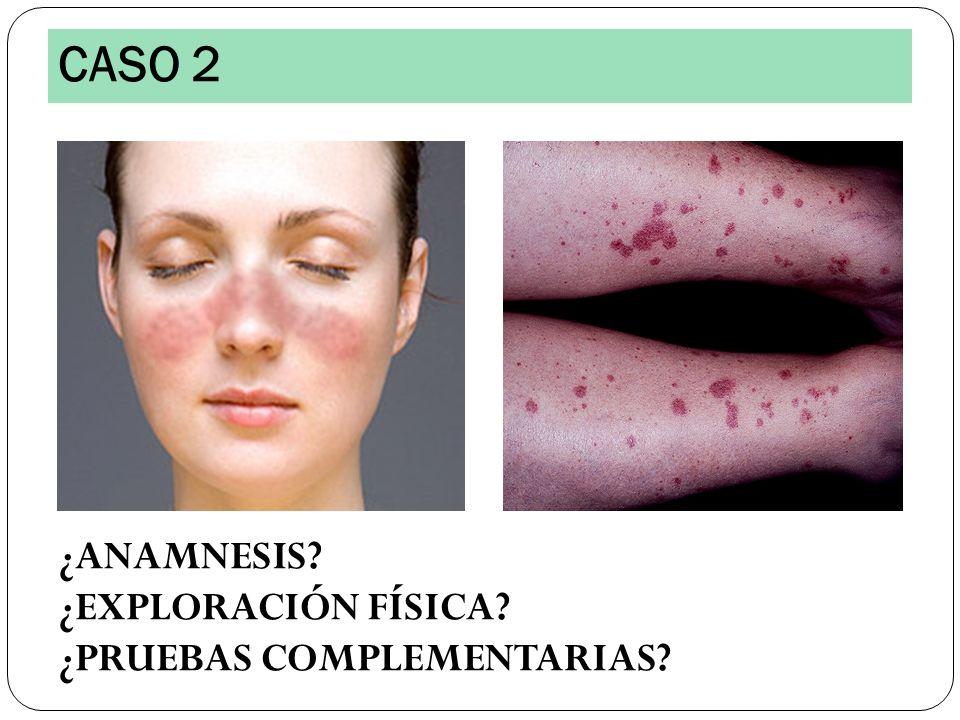 Analítica: Anemia microcítica (Hb: 9.5, VCM: 75) VCM: 87, PCR: 14 CPK: 780 Autoinmunidad: Ac anti Jo1 y otros antisintetasa positivos CASO 6 EMG: Potenciales miopáticos alterados