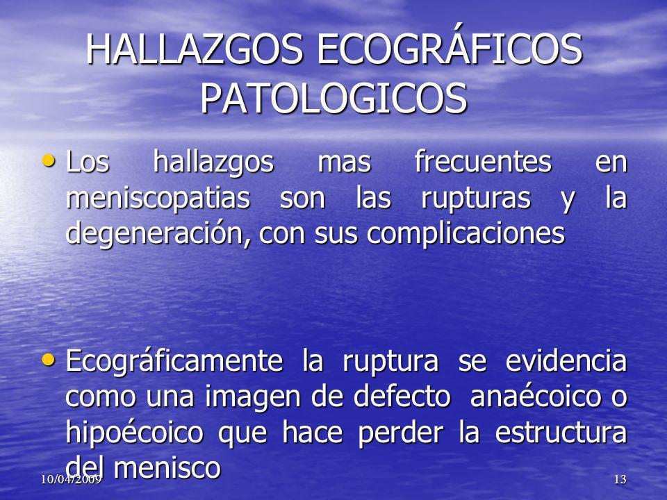 HALLAZGOS ECOGRÁFICOS PATOLOGICOS Los hallazgos mas frecuentes en meniscopatias son las rupturas y la degeneración, con sus complicaciones Los hallazg