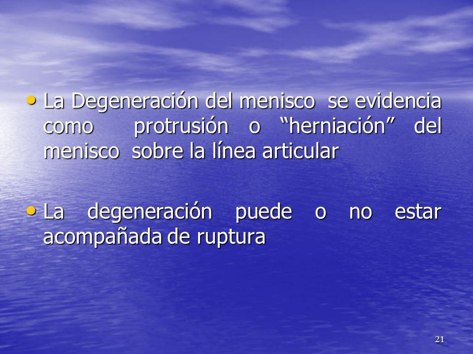 La Degeneración del menisco se evidencia como protrusión o herniación del menisco sobre la línea articular La Degeneración del menisco se evidencia co