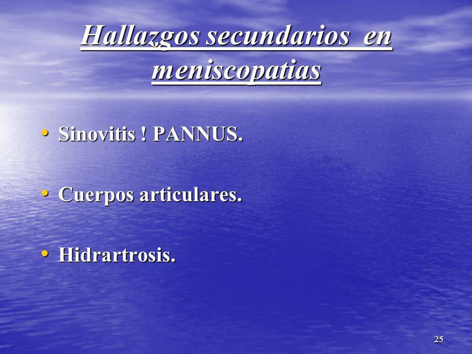 25 Hallazgos secundarios en meniscopatias Sinovitis ! PANNUS. Sinovitis ! PANNUS. Cuerpos articulares. Cuerpos articulares. Hidrartrosis. Hidrartrosis