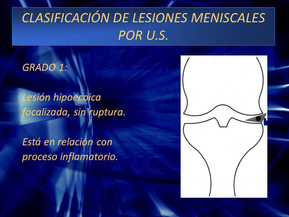 CLASIFICACIÓN DE LESIONES MENISCALES POR U.S. GRADO 1: Lesión hipoecoica focalizada, sin ruptura. Está en relación con proceso inflamatorio.