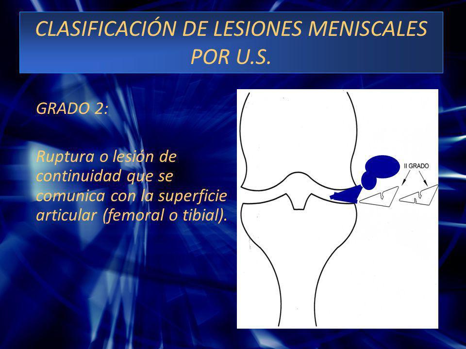 CLASIFICACIÓN DE LESIONES MENISCALES POR U.S. GRADO 2: Ruptura o lesión de continuidad que se comunica con la superficie articular (femoral o tibial).
