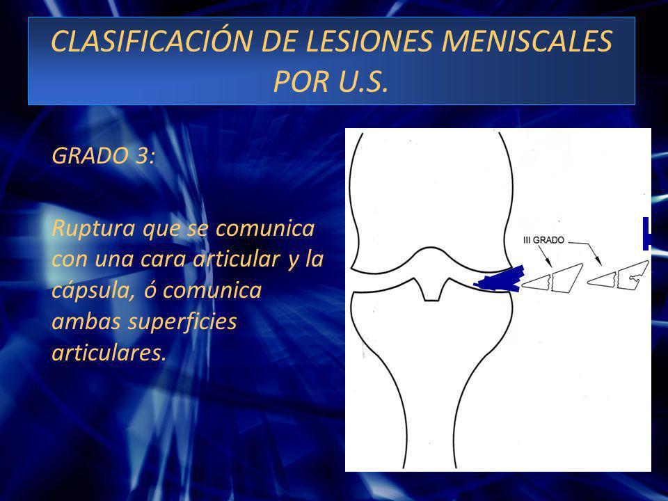 CLASIFICACIÓN DE LESIONES MENISCALES POR U.S. GRADO 3: Ruptura que se comunica con una cara articular y la cápsula, ó comunica ambas superficies artic