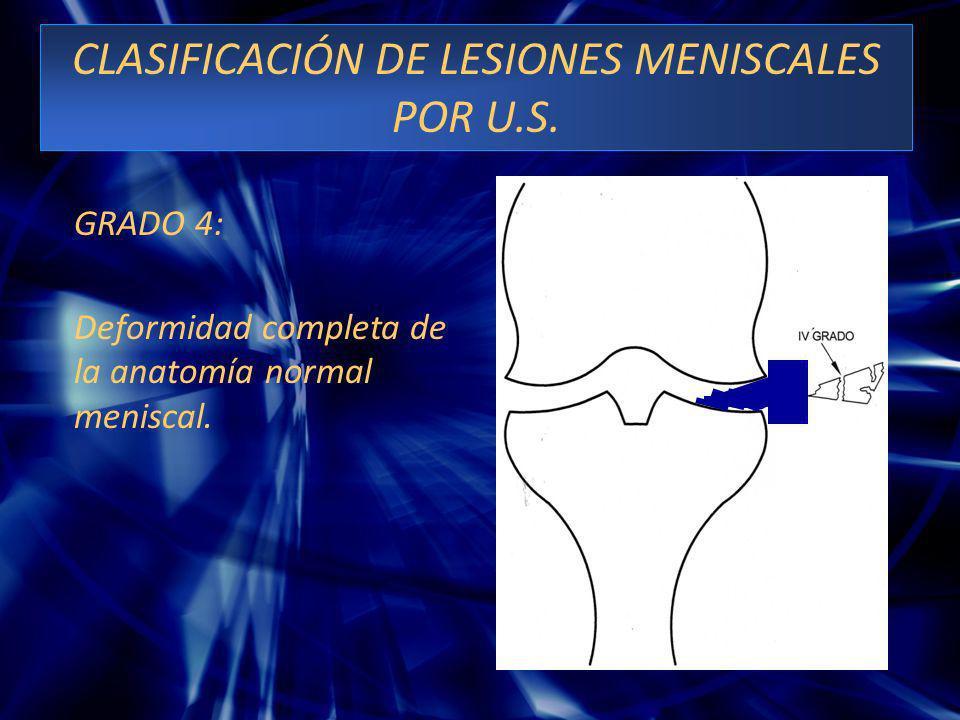 CLASIFICACIÓN DE LESIONES MENISCALES POR U.S. GRADO 4: Deformidad completa de la anatomía normal meniscal.