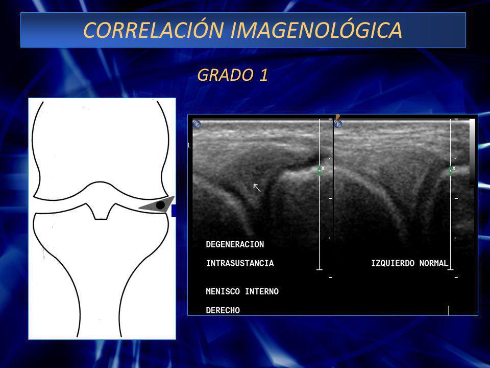 CORRELACIÓN IMAGENOLÓGICA GRADO 1 GRADO 1