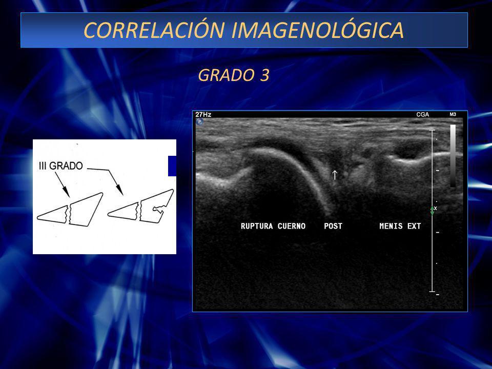 CLASIFICACION DE LESIONES MENISCALES POR U.S. GRADO 3: Ruptura que se comunica con una cara articular y la cápsula, ó comunica ambas superficies artic