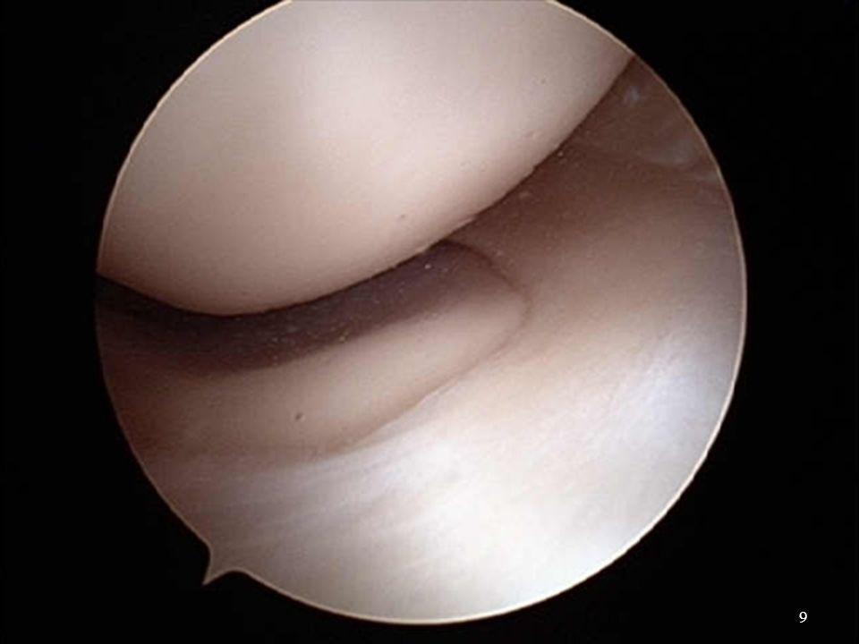 CLASIFICACIÓN DE LESIONES MENISCALES POR U.S.GRADO 1: Lesión hipoecoica focalizada, sin ruptura.