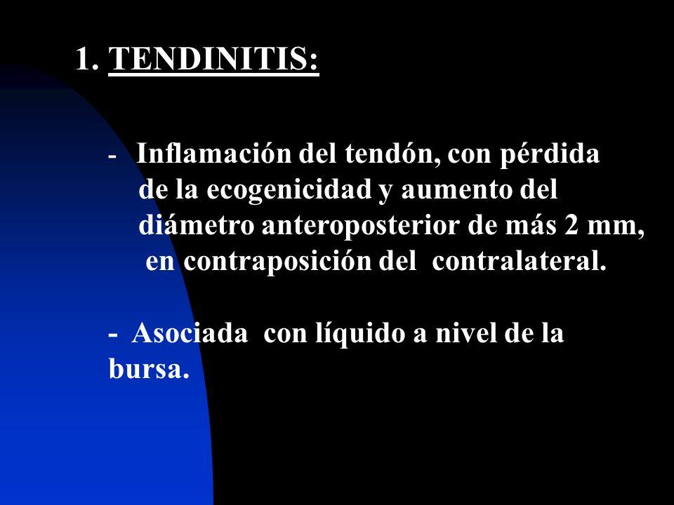 2. Desarrollo de tendinitis y fribrosis, acompañados de calcificaciones.