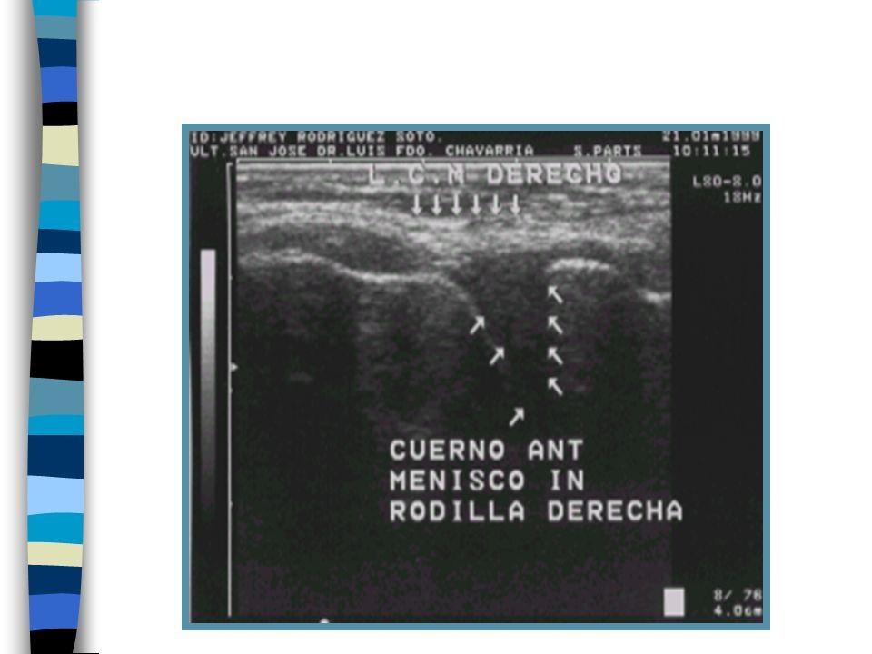 Lesiones intrarticulares: 1Valoración de la cantidad de líquido intrarticular. 2Cambios en el líquido intrarticular (hemartrosis, edema sinovial, cuer
