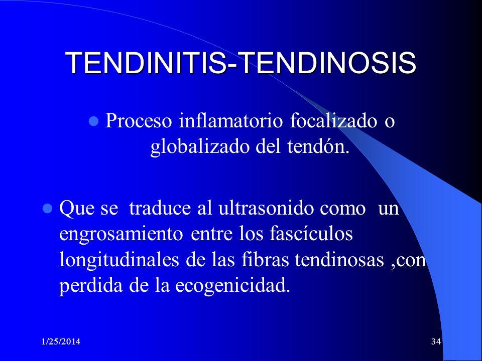 1/25/201433 TENDONES VALORACION DE: A-Diagnóstico de tendinitis aguda y crónica B-Ruptura de tendones (Aquileo, patelar, etc.) C-Luxación de tendones