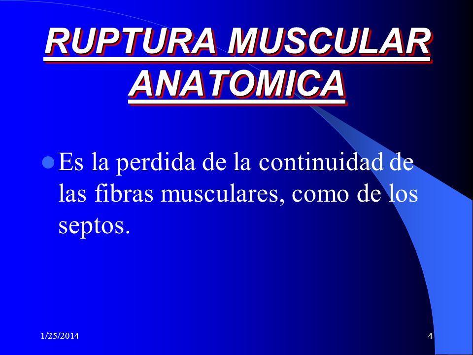 1/25/20143 MIALGIA RELACIONADA CON EL EJERCICIO Diferenciacion entre elongacion muscular y ruptura Dolor muscular de inicio tardío