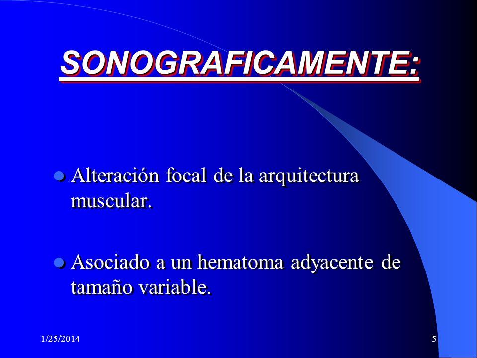 1/25/20144 RUPTURA MUSCULAR ANATOMICA Es la perdida de la continuidad de las fibras musculares, como de los septos.