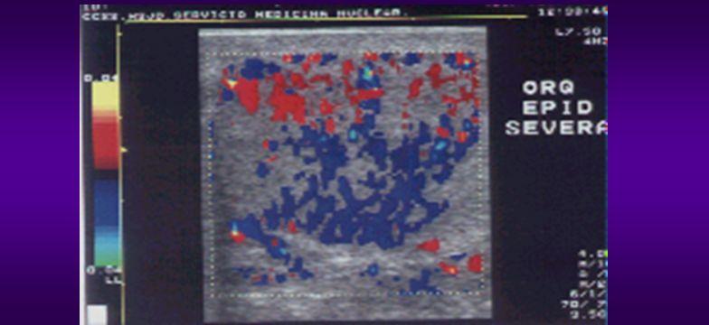 Doppler Color: incremento del flujo sanguíneo dentro y alrededor del epidídimo.