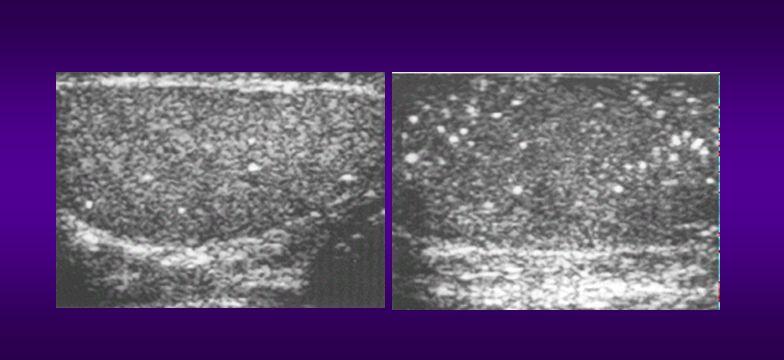 CALCIFICACIONES Y QUISTES TESTICULARES a. Quiste testicular simple b. Pequeñas calcificaciones testiculares c. Microlitiasis testicular