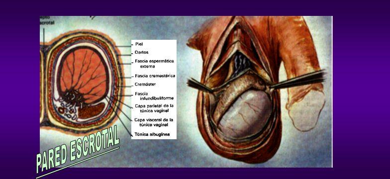 HERNIA Ecografía: - Descartar otras causas del aumento del tamaño escrotal: masas, quistes o hidrocele, hernia (al demostrar peristaltismo de asas dentro del escroto).
