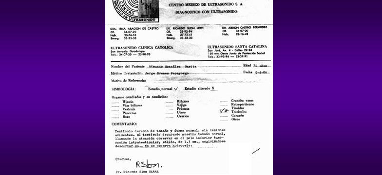 TUMORES TESTICULARES BENIGNOS a. Células de Sertoli b. Leydig c. Tejidos mesenquimales