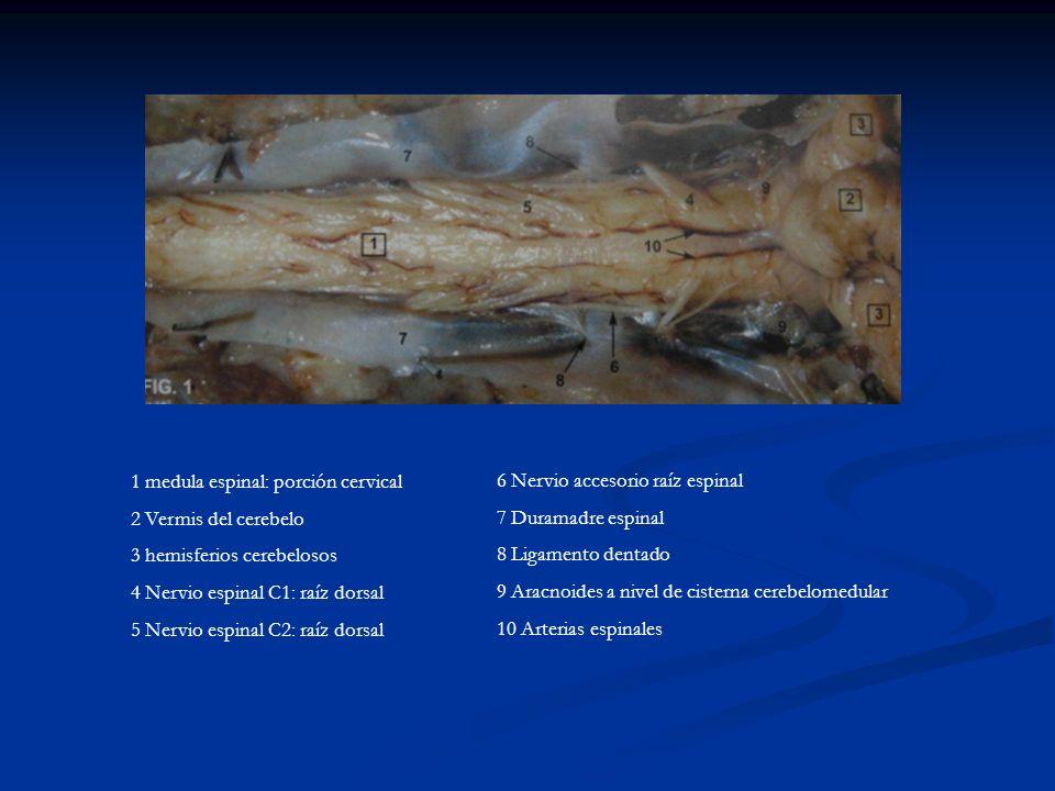 1 medula espinal: porción cervical 2 Vermis del cerebelo 3 hemisferios cerebelosos 4 Nervio espinal C1: raíz dorsal 5 Nervio espinal C2: raíz dorsal 6