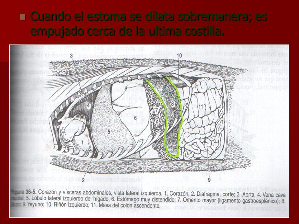 Cuando el estoma se dilata sobremanera; es empujado cerca de la ultima costilla. Cuando el estoma se dilata sobremanera; es empujado cerca de la ultim