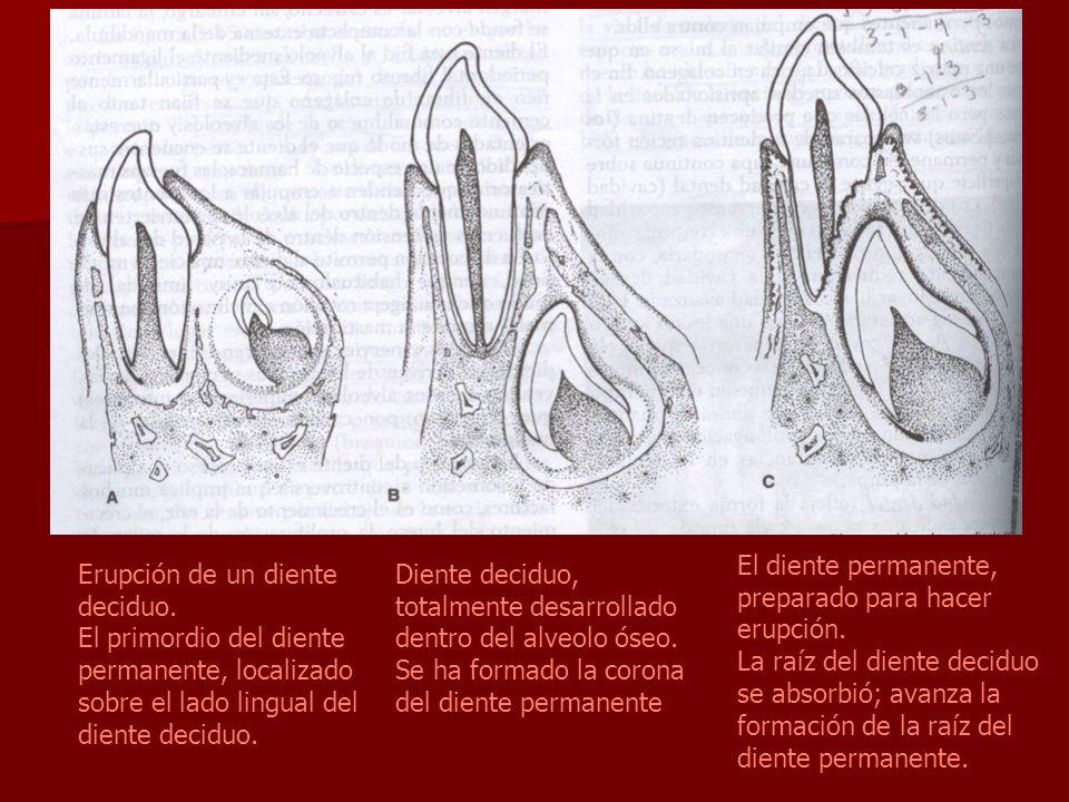 Erupción de un diente deciduo. El primordio del diente permanente, localizado sobre el lado lingual del diente deciduo. Diente deciduo, totalmente des