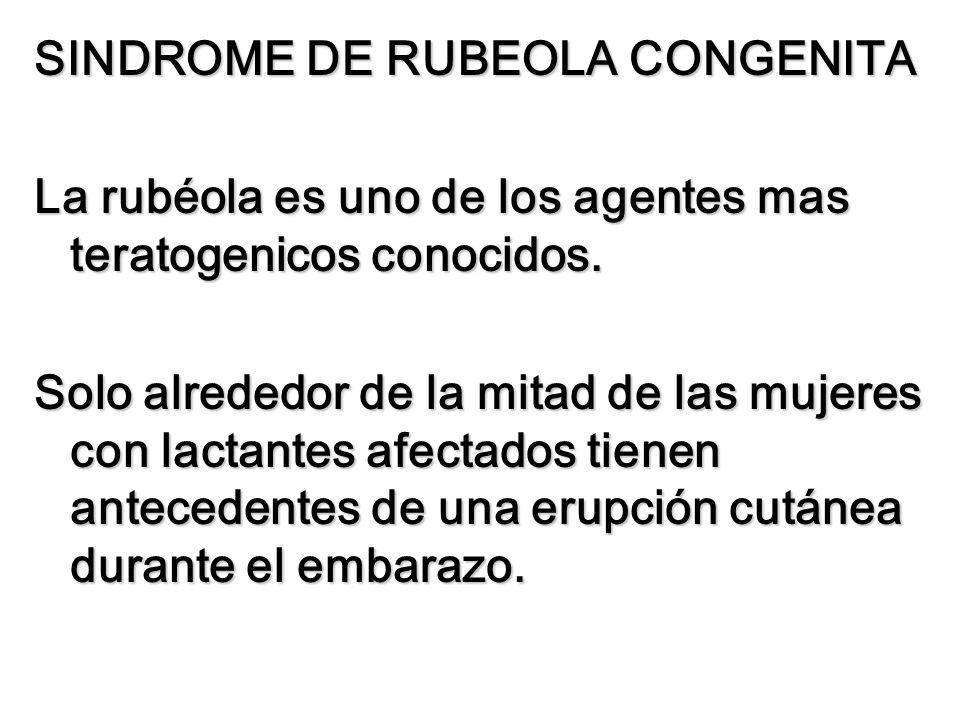 SINDROME DE RUBEOLA CONGENITA La rubéola es uno de los agentes mas teratogenicos conocidos. Solo alrededor de la mitad de las mujeres con lactantes af
